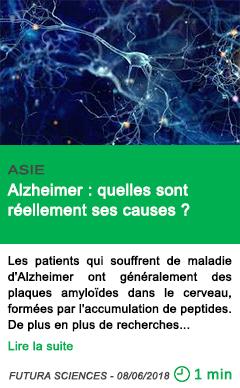 Science alzheimer quelles sont reellement ses causes