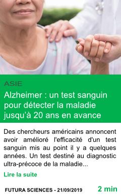 Science alzheimer un test sanguin pour detecter la maladie jusqu a 20 ans en avance page001