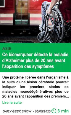 Science ce biomarqueur detecte la maladie d alzheimer plus de 20 ans avant l apparition des symptomes