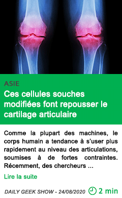 Science ces cellules souches modifiees font repousser le cartilage articulaire