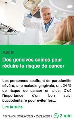Science des gencives saines pour reduire le risque de cancer