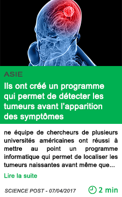 Science ils ont cree un programme qui permet de detecter les tumeurs avant l apparition des symptomes