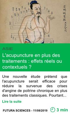 Science l acupuncture en plus des traitements effets reels ou contextuels page001