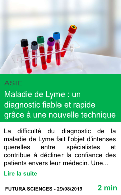 Science maladie de lyme un diagnostic fiable et rapide grace a une nouvelle technique page001