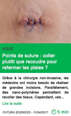 Science points de suture coller plutot que recoudre pour refermer les plaies