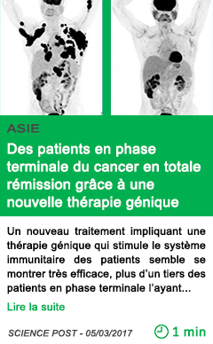 Science saie des patients en phase terminale du cancer en totale remission grace a une nouvelle therapie genique