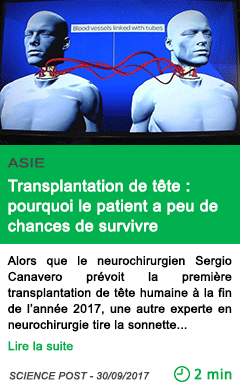 Science transplantation de tete pourquoi le patient a peu de chances de survivre 1
