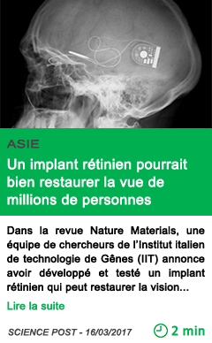 Science un implant retinien pourrait bien restaurer la vue de millions de personnes 1