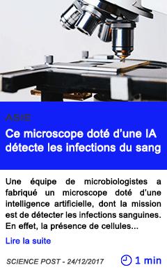 Technologie ce microscope dote d une ia detecte les infections du sang